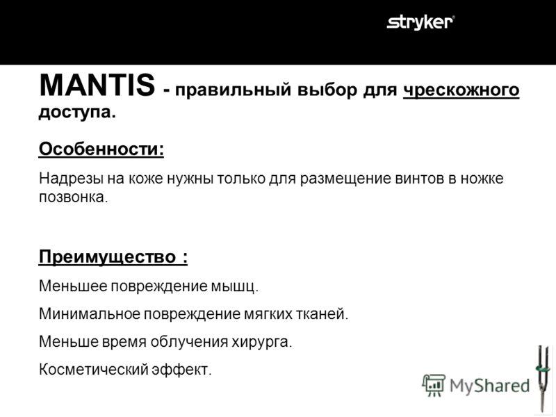 MANTIS - правильный выбор для чрескожного доступа. Особенности: Надрезы на коже нужны только для размещение винтов в ножке позвонка. Преимущество?