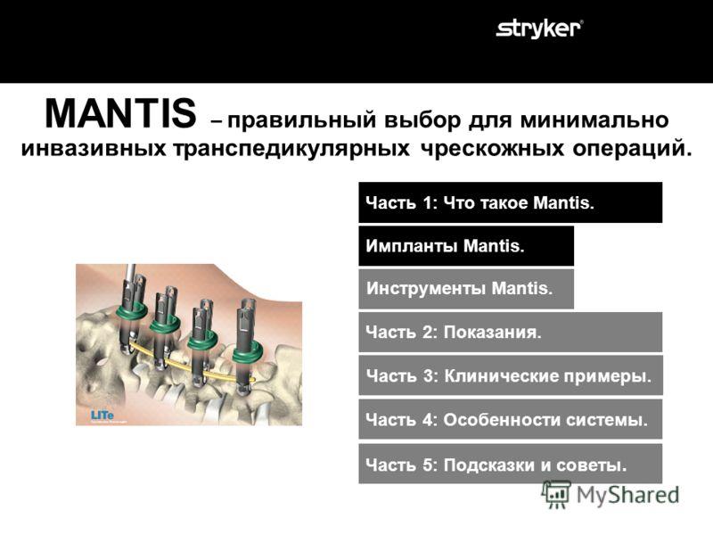 MANTIS - правильный выбор для минимально инвазивных транспедикулярных чрескожных операций. Система Mantis является одной из последних разработок компании Stryker входящая в такой бренд как LITe (продукты для проведения минимально инвазивных операций)