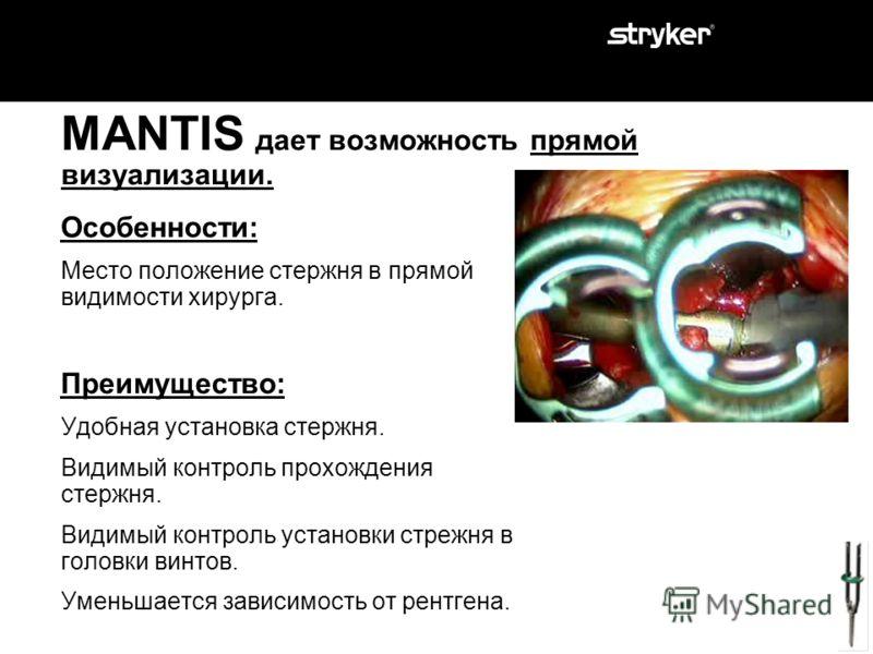 MANTIS дает возможность прямой визуализации. Особенности: Место положение стержня в прямой видимости хирурга. Преимущество?