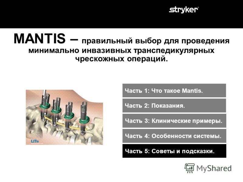 MANTIS дает возможность прямой визуализации. Особенности: Место положение стержня в прямой видимости хирурга. Преимущество: Удобная установка стержня. Видимый контроль прохождения стержня. Видимый контроль установки стрежня в головки винтов. Уменьшае