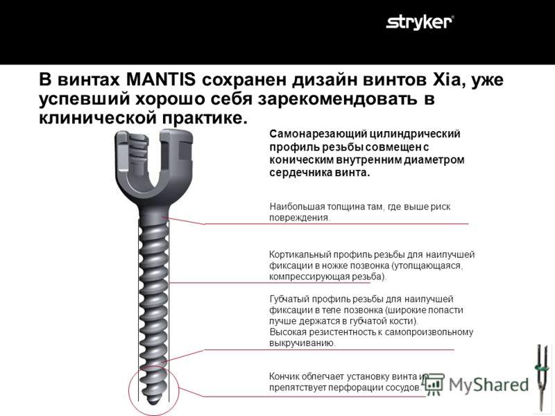 MANTIS – правильный выбор для минимально инвазивных транспедикулярных чрескожных операций. Часть 2: Показания. Часть 1: Что такое Mantis. Инструменты Mantis. Импланты Mantis. Часть 3: Клинические примеры. Часть 4: Особенности системы. Часть 5: Подска