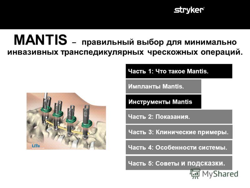 New Persuader Стержни MANTIS представлены 21-им типо- размером. Предизогнутый стержень: 6.0 x 30-50 мм (с шагом 5мм) Предизогнутый стержень : 6.0 x 60-130 мм (с шагом 10 мм) Максимально предизогнутый стержень : 6.0 x 50-130 мм (с шагом 10 мм) Прямой