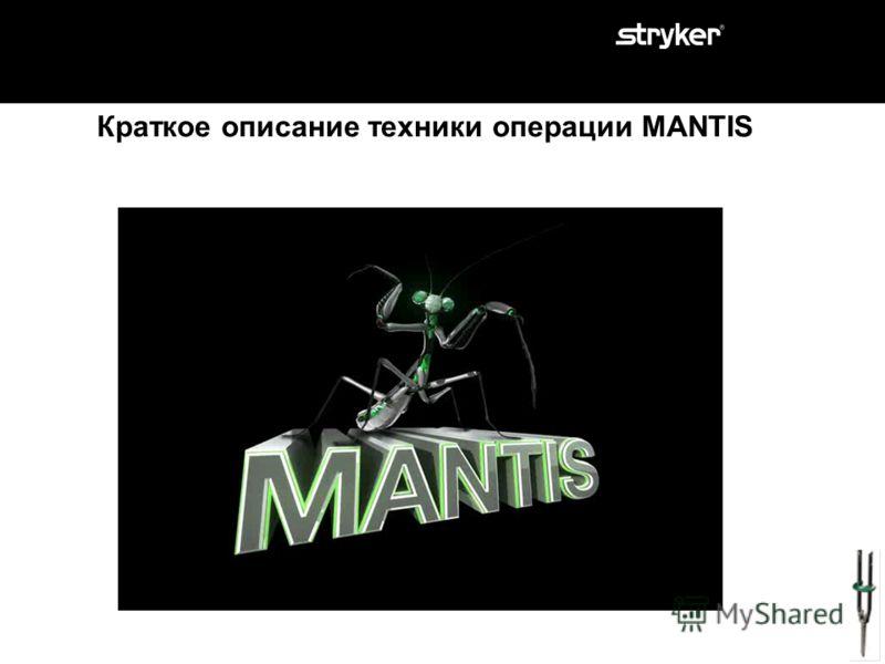 MANTIS – правильный выбор для минимально инвазивных транспедикулярных чрескожных операций. Часть 2: Показания. Часть 1: Что такое Mantis. Инструменты Mantis Импланты Mantis. Часть 3: Клинические примеры. Часть 4: Особенности системы. Часть 5: Советы