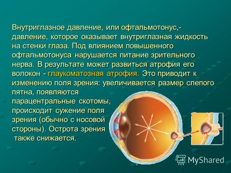 Внутриглазное давление, или офтальмотонус,- давление, которое оказывает внутриглазная жидкость на стенки глаза. Под влиянием повышенного офтальмотонуса нарушается питание зрительного нерва. В результате может развиться атрофия его волокон - глаукомат