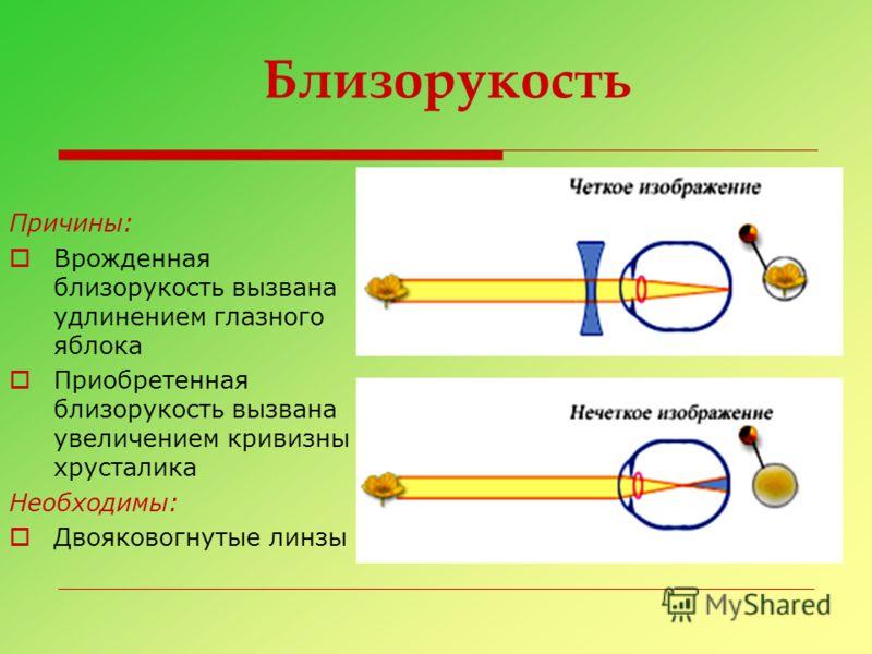 Близорукость Причины: Врожденная близорукость вызвана удлинением глазного яблока Приобретенная близорукость вызвана увеличением кривизны хрусталика Необходимы: Двояковогнутые линзы