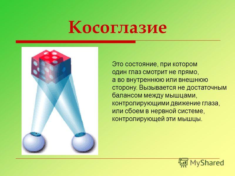 Косоглазие Это состояние, при котором один глаз смотрит не прямо, а во внутреннюю или внешнюю сторону. Вызывается не достаточным балансом между мышцами, контролирующими движение глаза, или сбоем в нервной системе, контролирующей эти мышцы.