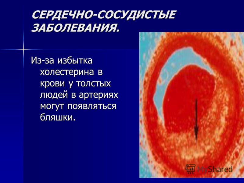 СЕРДЕЧНО-СОСУДИСТЫЕ ЗАБОЛЕВАНИЯ. Из-за избытка холестерина в крови у толстых людей в артериях могут появляться бляшки.