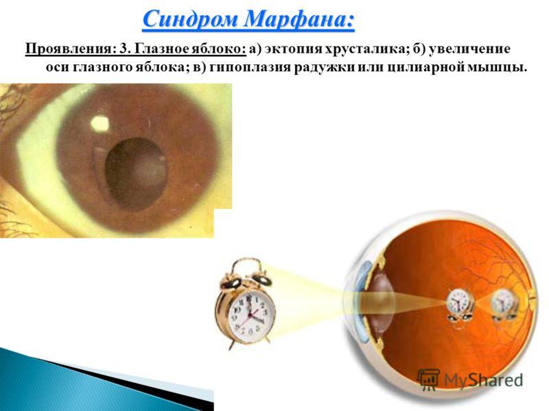 Синдром Марфана: Проявления: 3. Глазное яблоко: а) эктопия хрусталика; б) увеличение оси глазного яблока; в) гипоплазия радужки или цилиарной мышцы.