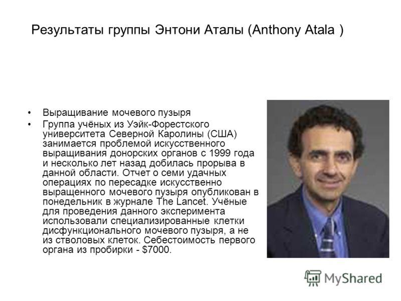 Результаты группы Энтони Аталы (Anthony Atala ) Выращивание мочевого пузыря Группа учёных из Уэйк-Форестского университета Северной Каролины (США) занимается проблемой искусственного выращивания донорских органов с 1999 года и несколько лет назад доб