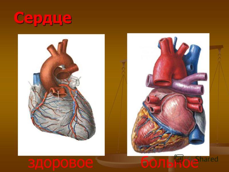 Сердце здоровое больное