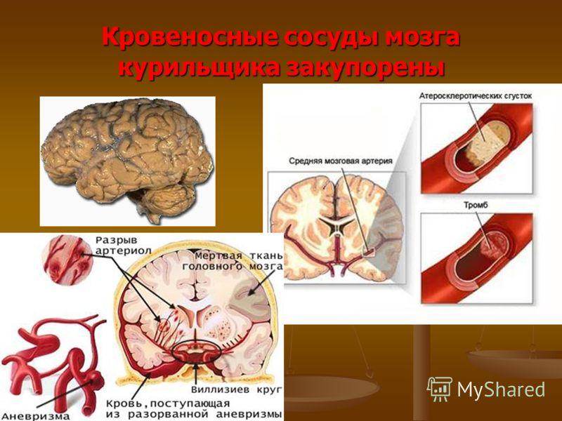 Кровеносные сосуды мозга курильщика закупорены
