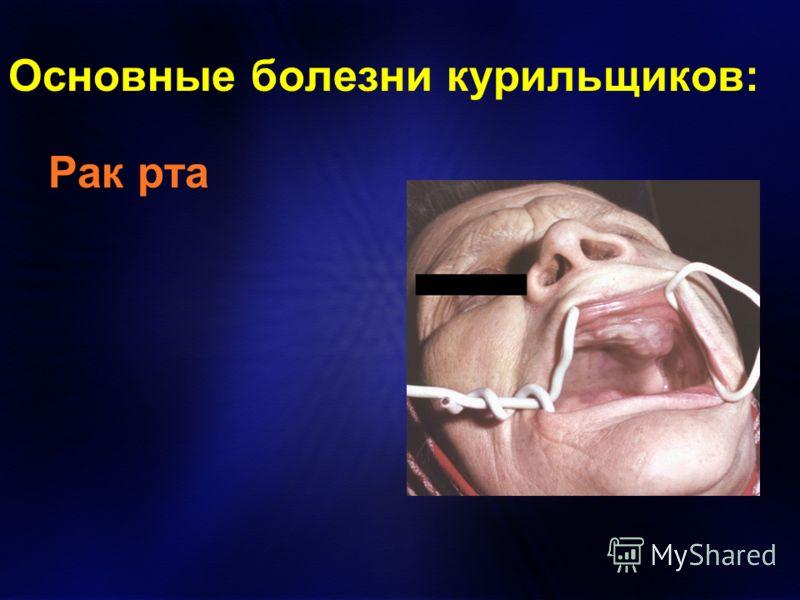 Основные болезни курильщиков: Рак рта