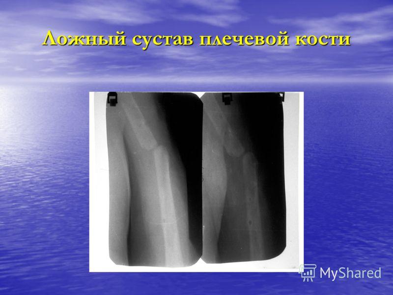 Ложный сустав плечевой кости