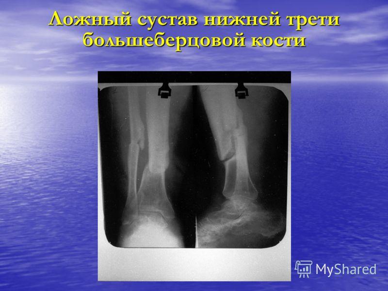 Ложный сустав нижней трети большеберцовой кости