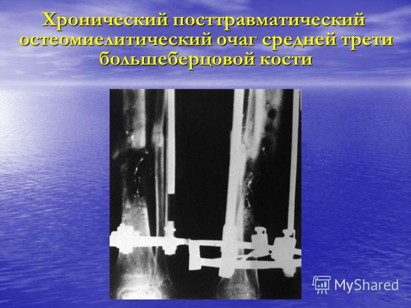 Хронический посттравматический остеомиелитический очаг средней трети большеберцовой кости