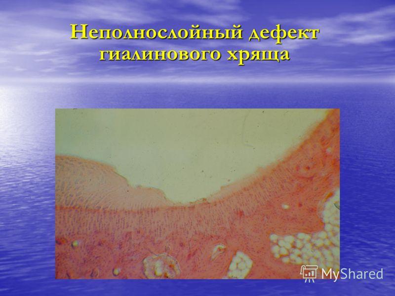 Неполнослойный дефект гиалинового хряща