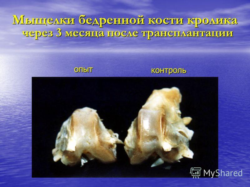 Мыщелки бедренной кости кролика Мыщелки бедренной кости кролика через 3 месяца после трансплантации через 3 месяца после трансплантации контроль опыт