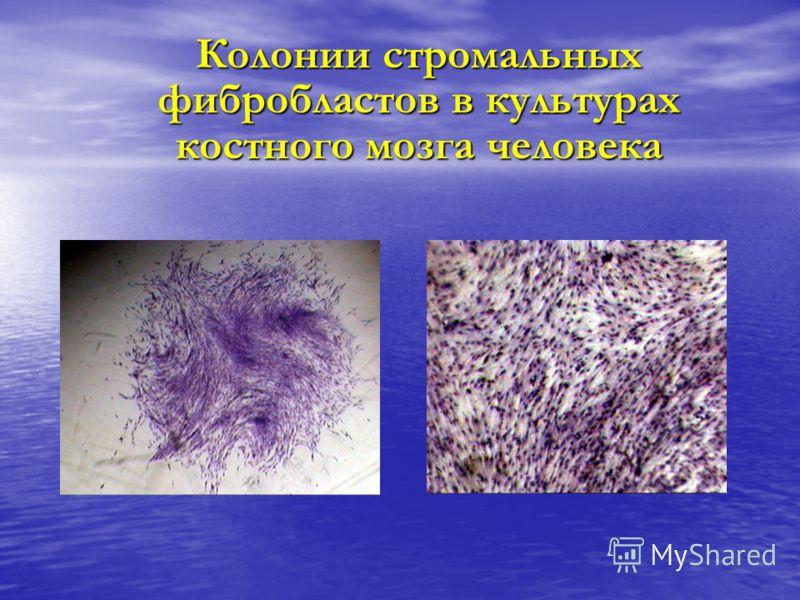 Колонии стромальных фибробластов в культурах костного мозга человека