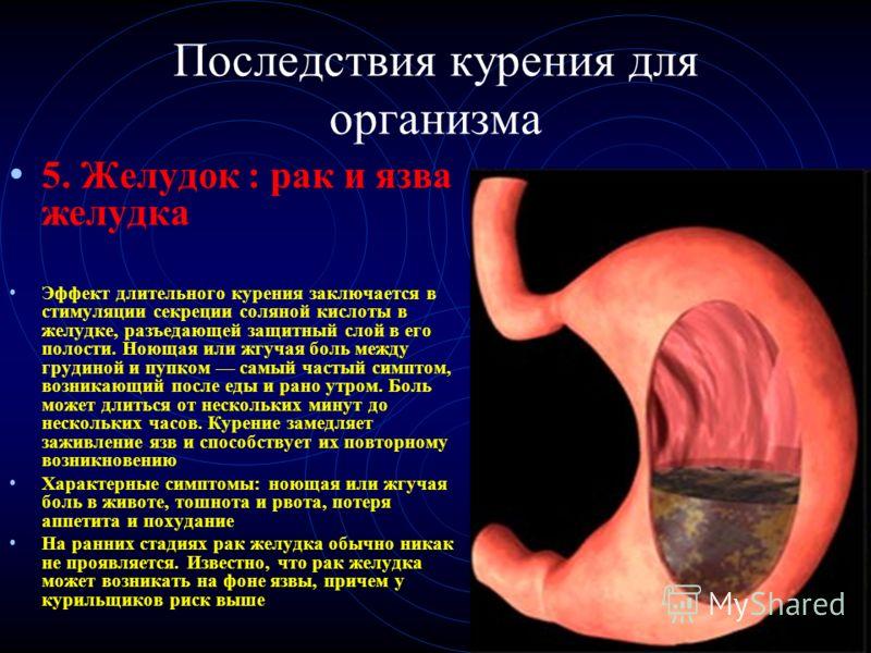 Последствия курения для организма 5. Желудок : рак и язва желудка Эффект длительного курения заключается в стимуляции секреции соляной кислоты в желудке, разъедающей защитный слой в его полости. Ноющая или жгучая боль между грудиной и пупком самый ча