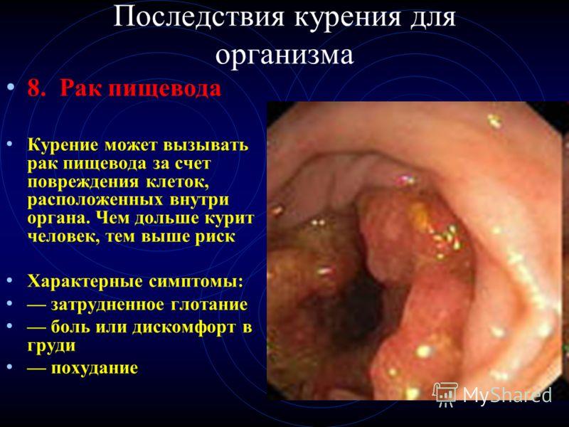 Последствия курения для организма 8. Рак пищевода Курение может вызывать рак пищевода за счет повреждения клеток, расположенных внутри органа. Чем дольше курит человек, тем выше риск Характерные симптомы: затрудненное глотание боль или дискомфорт в г