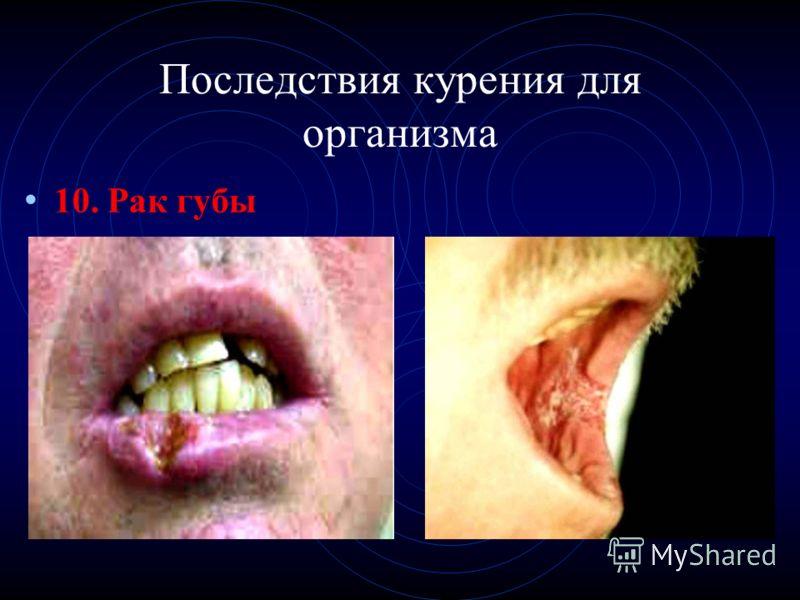 Последствия курения для организма 10. Рак губы