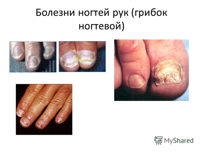 Болезни ногтей рук (грибок ногтевой)