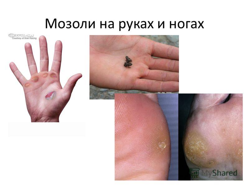 Мозоли на руках и ногах