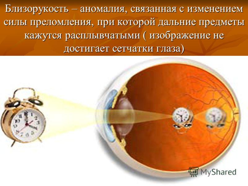 Близорукость – аномалия, связанная с изменением силы преломления, при которой дальние предметы кажутся расплывчатыми ( изображение не достигает сетчатки глаза)