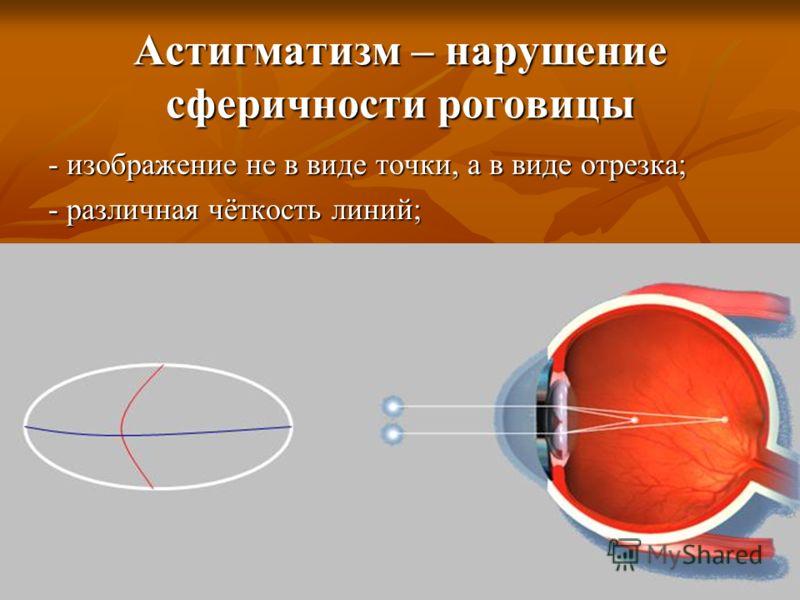 Астигматизм – нарушение сферичности роговицы - изображение не в виде точки, а в виде отрезка; - различная чёткость линий;