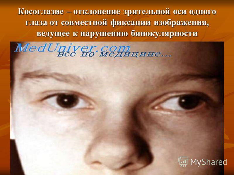 Косоглазие – отклонение зрительной оси одного глаза от совместной фиксации изображения, ведущее к нарушению бинокулярности