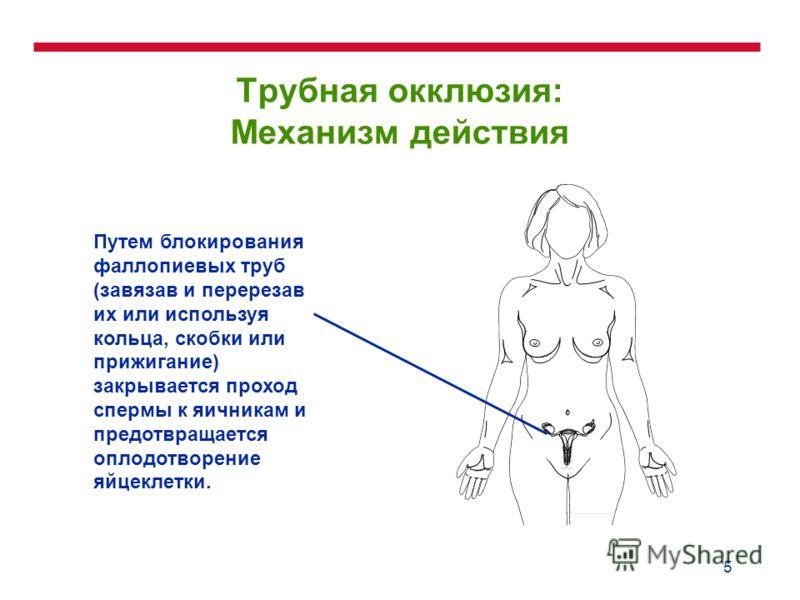 5 Трубная окклюзия: Механизм действия Путем блокирования фаллопиевых труб (завязав и перерезав их или используя кольца, скобки или прижигание) закрывается проход спермы к яичникам и предотвращается оплодотворение яйцеклетки.
