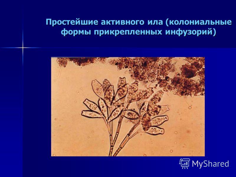 Простейшие активного ила (колониальные формы прикрепленных инфузорий)