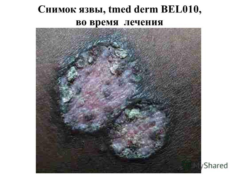 Снимок язвы, tmed derm BEL010, во время лечения