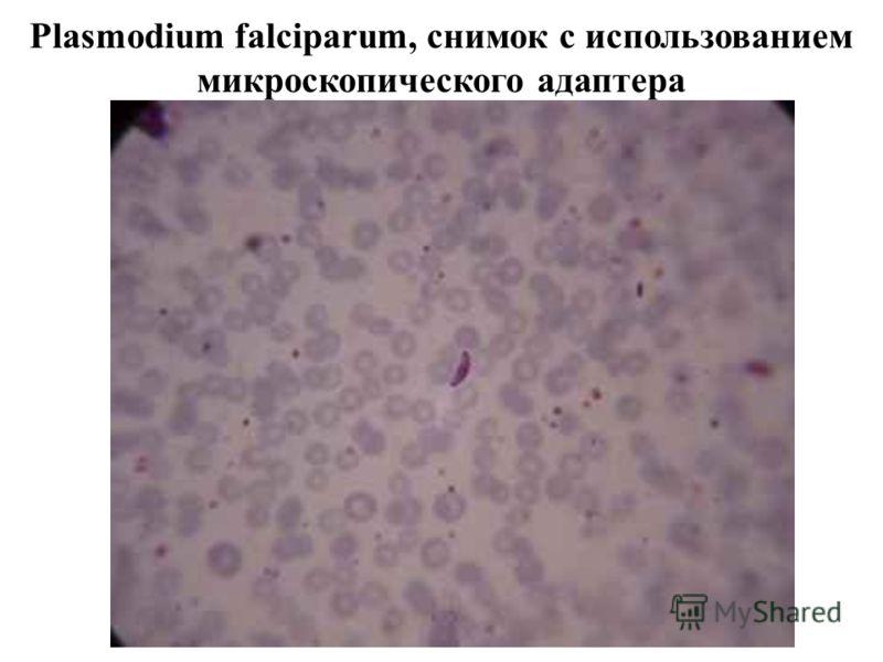 Plasmodium falciparum, снимок с использованием микроскопического адаптера