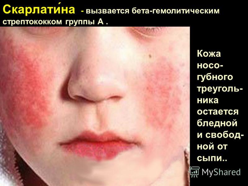 Скарлати́на - вызвается бета-гемолитическим стрептококком группы А. Кожа носо- губного треуголь- ника остается бледной и свобод- ной от сыпи..
