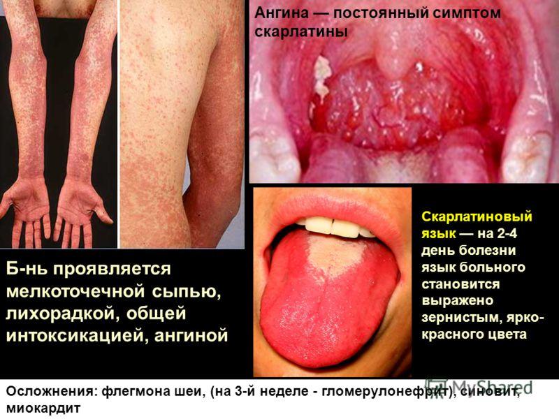 Скарлатиновый язык на 2-4 день болезни язык больного становится выражено зернистым, ярко- красного цвета Б-нь проявляется мелкоточечной сыпью, лихорадкой, общей интоксикацией, ангиной Ангина постоянный симптом скарлатины Осложнения: флегмона шеи, (на