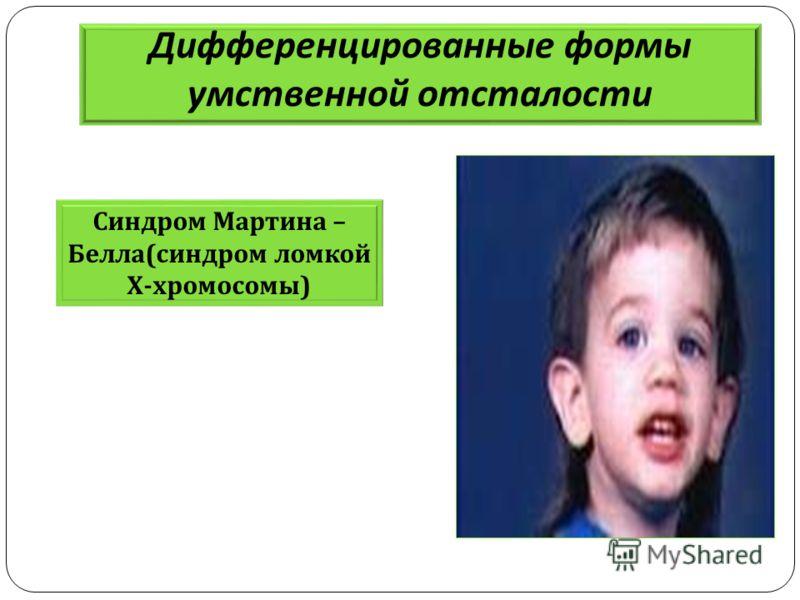 Дифференцированные формы умственной отсталости Синдром Мартина – Белла ( синдром ломкой Х - хромосомы )