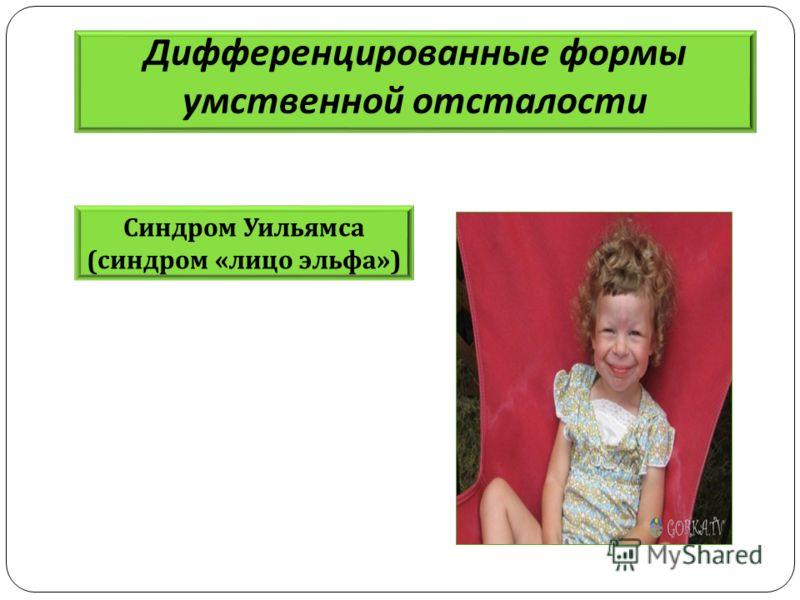 Дифференцированные формы умственной отсталости Синдром Уильямса ( синдром « лицо эльфа »)