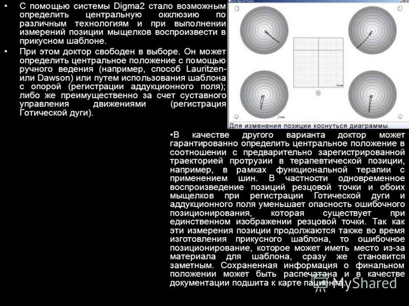 С помощью системы Digma2 стало возможным определить центральную окклюзию по различным технологиям и при выполнении измерений позиции мыщелков воспроизвести в прикусном шаблоне. При этом доктор свободен в выборе. Он может определить центральное положе