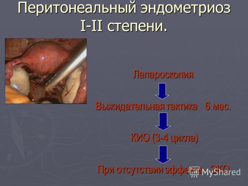 Перитонеальный эндометриоз I-II степени. Лапароскопия Выжидательная тактика 6 мес. КИО (3-4 цикла) КИО (3-4 цикла) При отсутствии эффекта - ЭКО