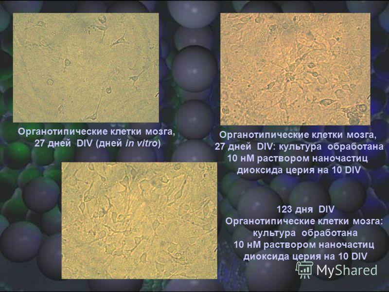Органотипические клетки мозга, 27 дней DIV (дней in vitro) Органотипические клетки мозга, 27 дней DIV: культура обработана 10 нM раствором наночастиц диоксида церия на 10 DIV 123 дня DIV Органотипические клетки мозга: культура обработана 10 нM раство