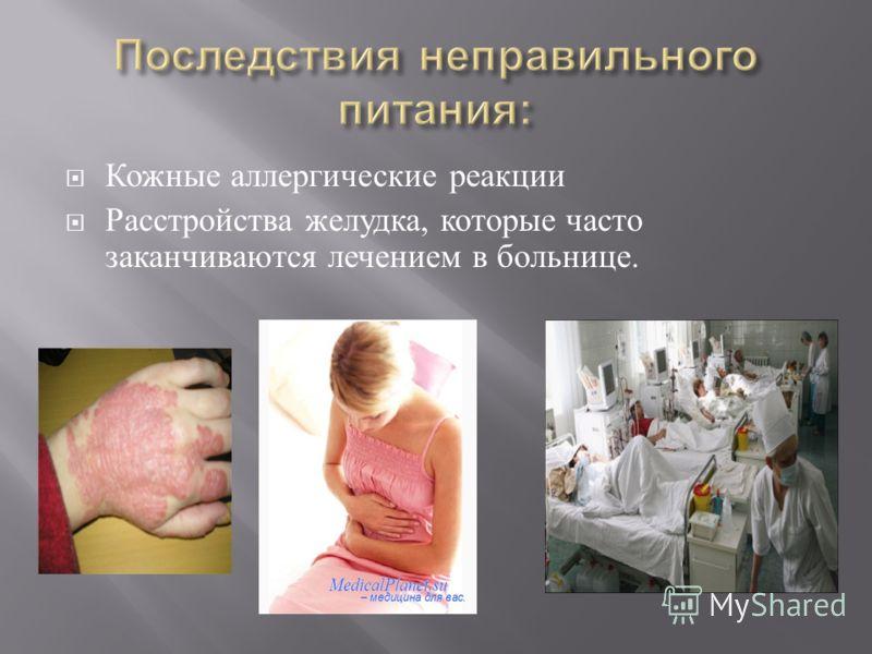 Кожные аллергические реакции Расстройства желудка, которые часто заканчиваются лечением в больнице.