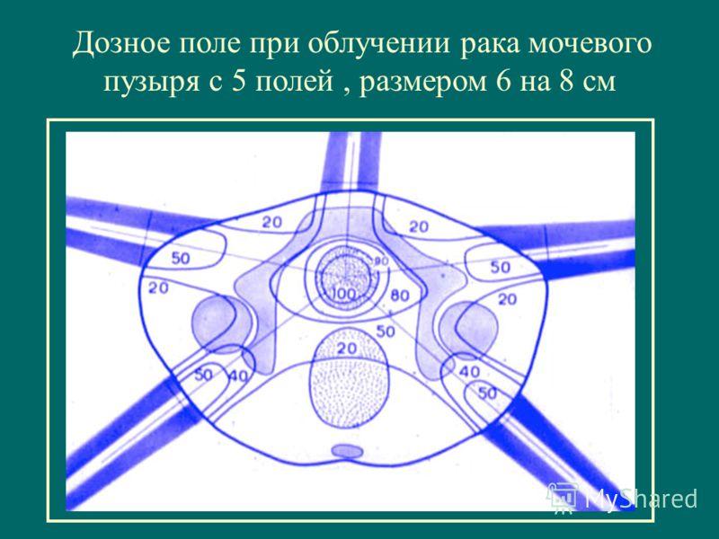 Дозное поле при облучении рака мочевого пузыря с 5 полей, размером 6 на 8 см