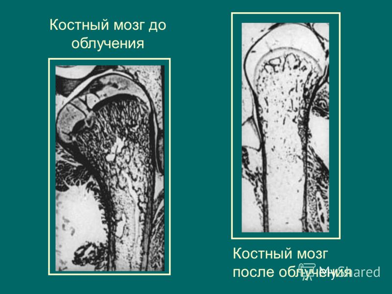 Костный мозг до облучения Костный мозг после облучения