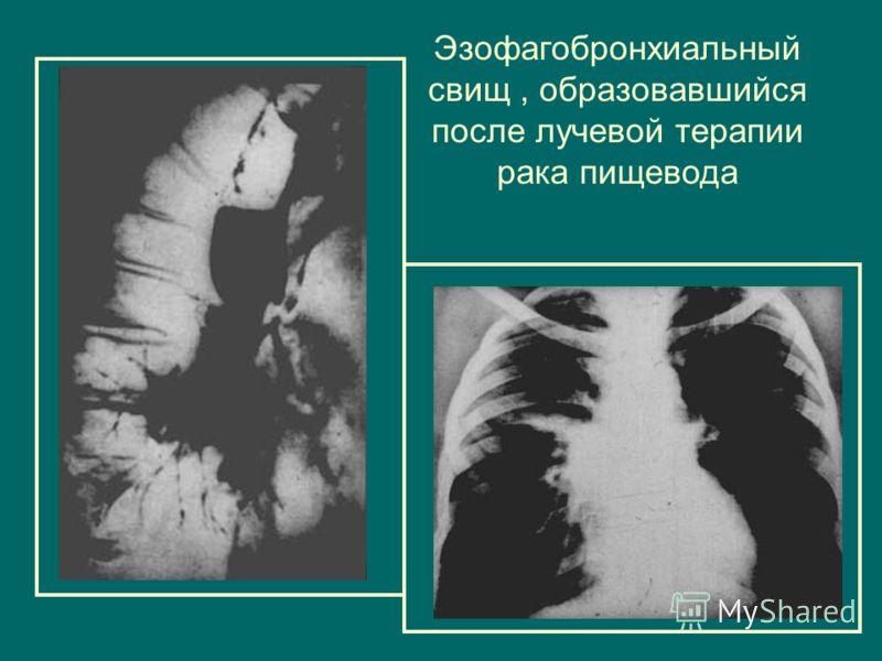 Эзофагобронхиальный свищ, образовавшийся после лучевой терапии рака пищевода