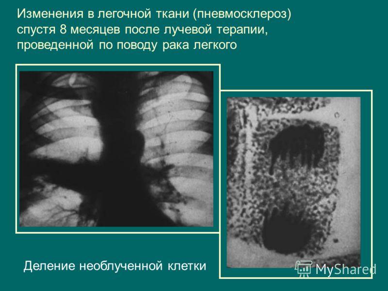 Изменения в легочной ткани (пневмосклероз) спустя 8 месяцев после лучевой терапии, проведенной по поводу рака легкого Деление необлученной клетки