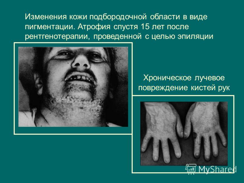 Хроническое лучевое повреждение кистей рук Изменения кожи подбородочной области в виде пигментации. Атрофия спустя 15 лет после рентгенотерапии, проведенной с целью эпиляции