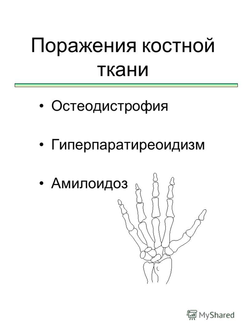 Поражения костной ткани Остеодистрофия Гиперпаратиреоидизм Амилоидоз
