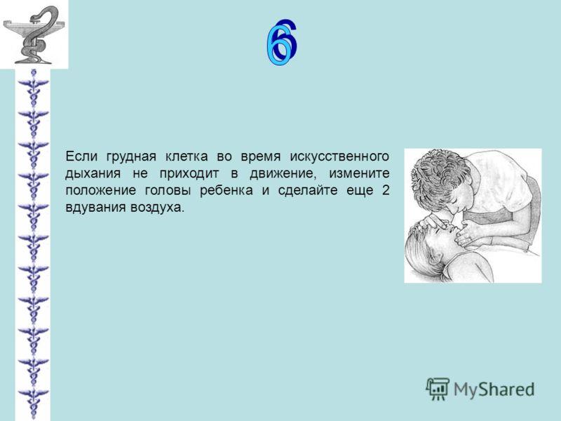 Если грудная клетка во время искусственного дыхания не приходит в движение, измените положение головы ребенка и сделайте еще 2 вдувания воздуха.