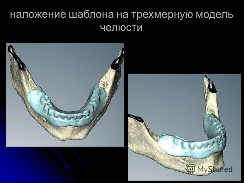 наложение шаблона на трехмерную модель челюсти